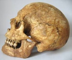 Rotherham Minster skull with overbite